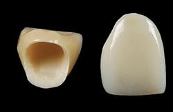 cirkonio oksido keramikos protezas
