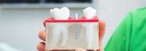 dantu-implantai-slider7